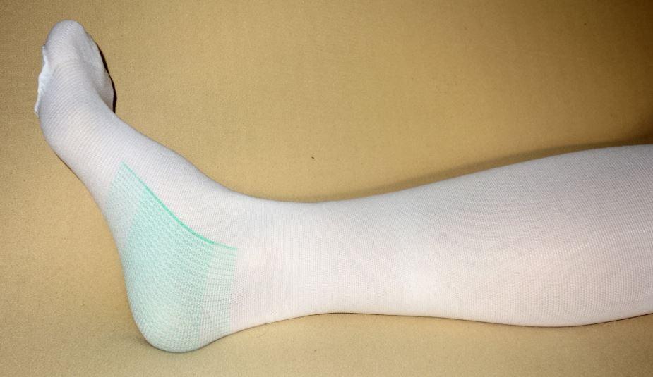 Thrombose Bein Tödlich